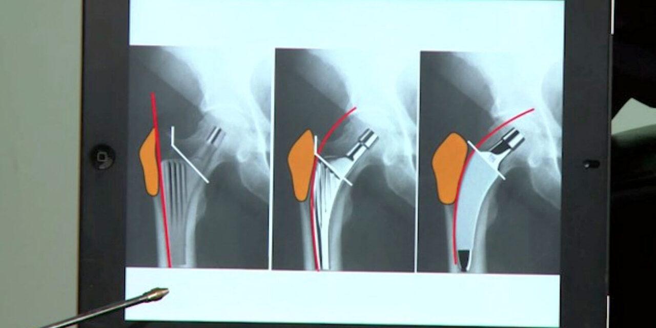 Arthrose Behandlung durch Hüftgelenkersatz