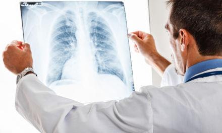 Lungenkrebs – Klinik und Forschung