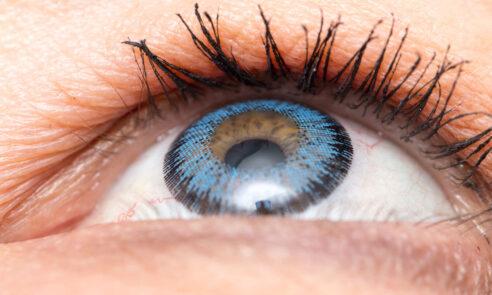 Künstliche Linsen implantieren statt Lesebrille