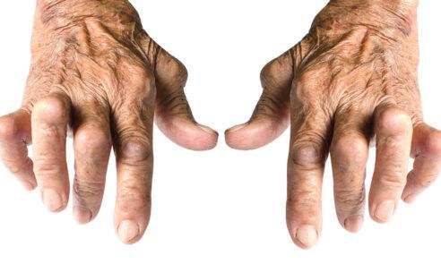 Rheumatoide Arthritis – Therapie
