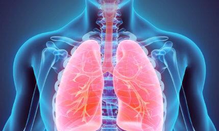 Mukoviszidose / Cystische Fibrose – eine unheilbare Krankheit