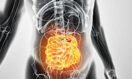 Darmkrebs – Wie behandelt man Lebermetastasen