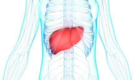 Metastasen in der Leber durch Darmkrebs