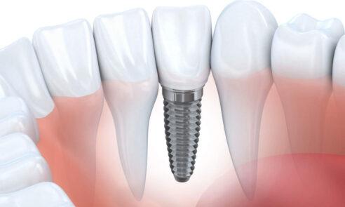 Blutverdünnende Medikamente – Zahnimplantat trotzdem möglich?