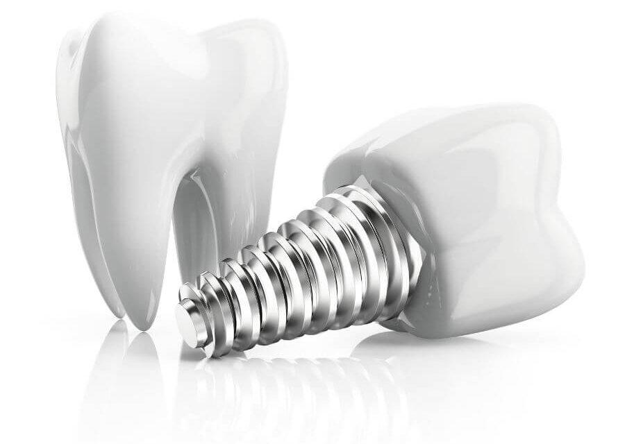 Possibilités et limites du traitement par implants – Zahnimplantate
