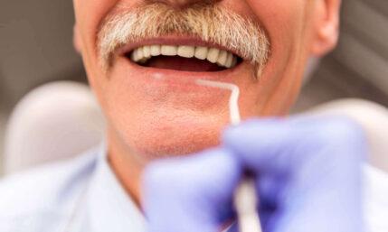Zahnimplantat als moderner Zahnersatz
