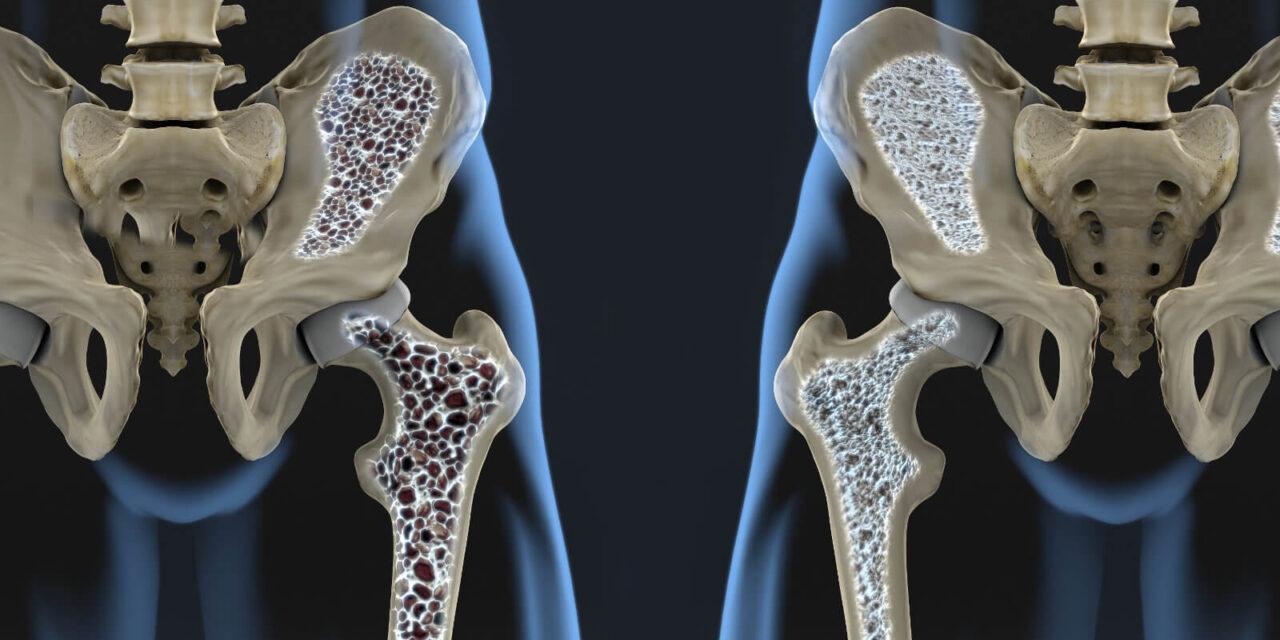 Osteoporose – Auslöser für viele Altersfrakturen