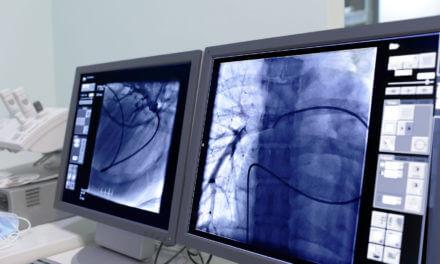 Moderne Strahlentherapie in der Radio-Onkologie