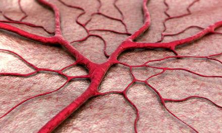 Tumor – Gefässe verschliessen durch Embolisation