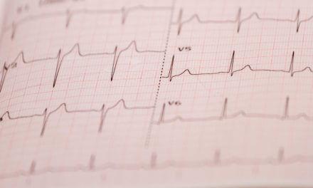 Vorhofflimmern – häufigste Herzrhythmusstörung