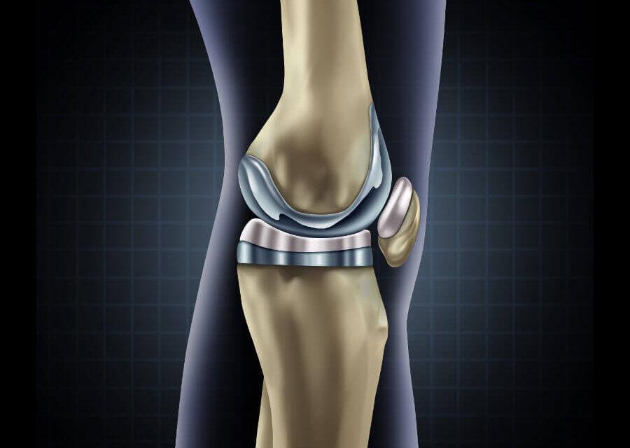 Arthrose im Knie – künstliches Gelenk als Lösung