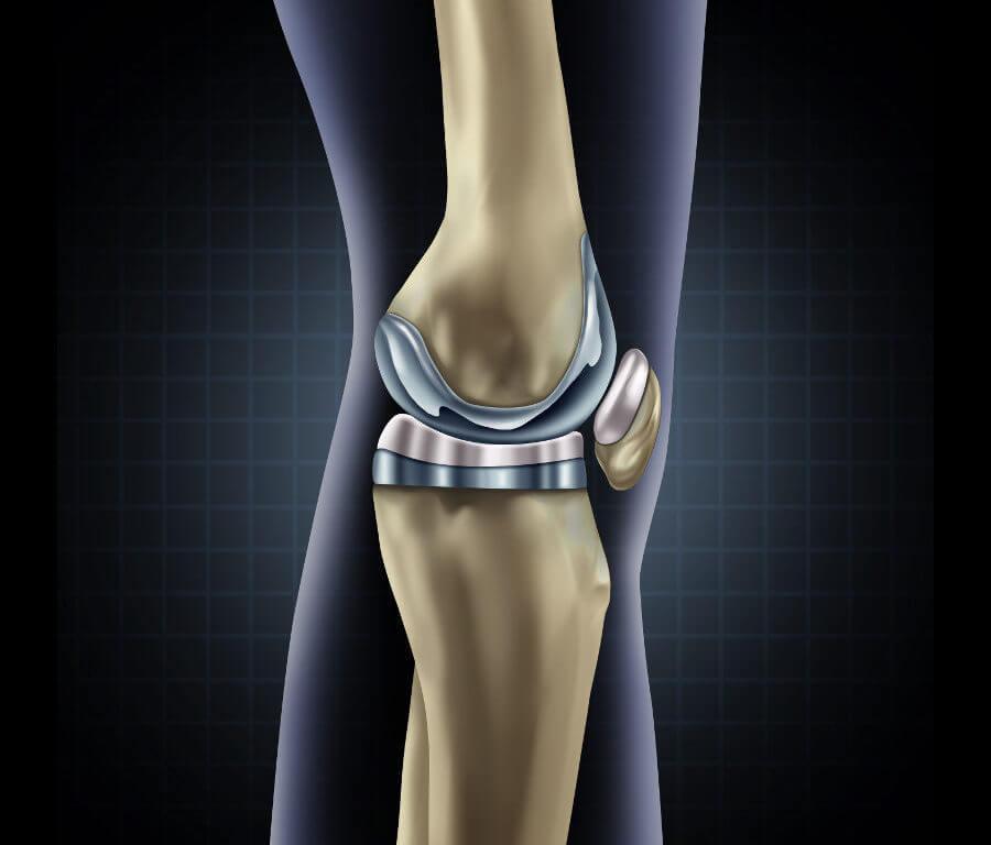 Krankenkasse rechnet Operationen beider Knie zusammen (Krankengeldzahlung)