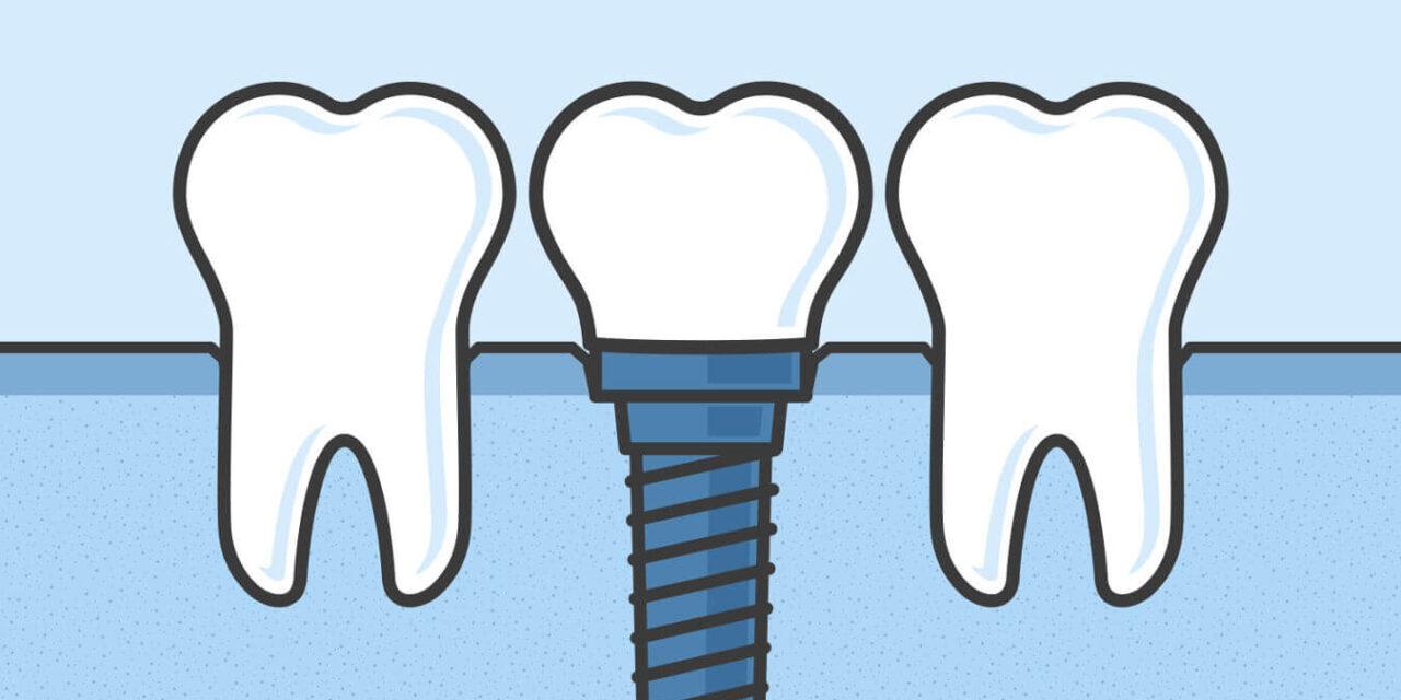 Zahnimplantate – endlich wieder richtig kauen!