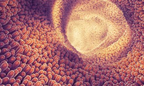 Ileus – Wie gefährlich ist ein Darmverschluss?