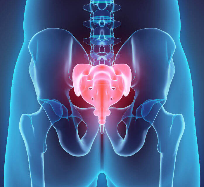 Sinus pilonidalis – Entzündung mit Fisteln