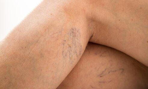 Krampfadern – nicht nur ein kosmetisches Problem