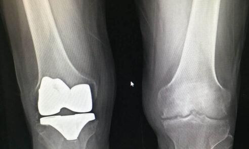 Schmerzen mit Knieprothese