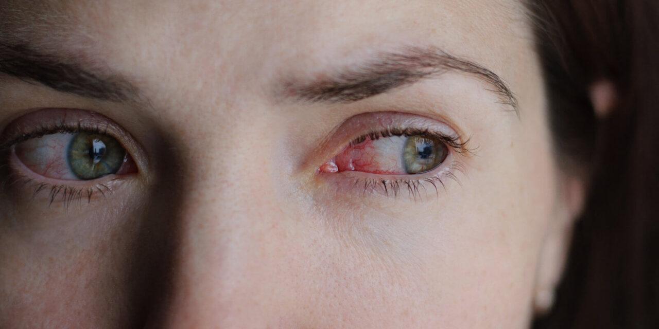 Diabetes kann Augenkrankheiten auslösen