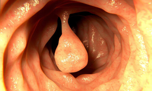 Polypen im Darm – wie gefährlich sind sie?