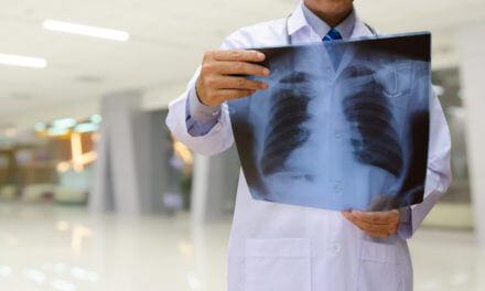 Tumor des Brustfells – Pleuramesotheliom