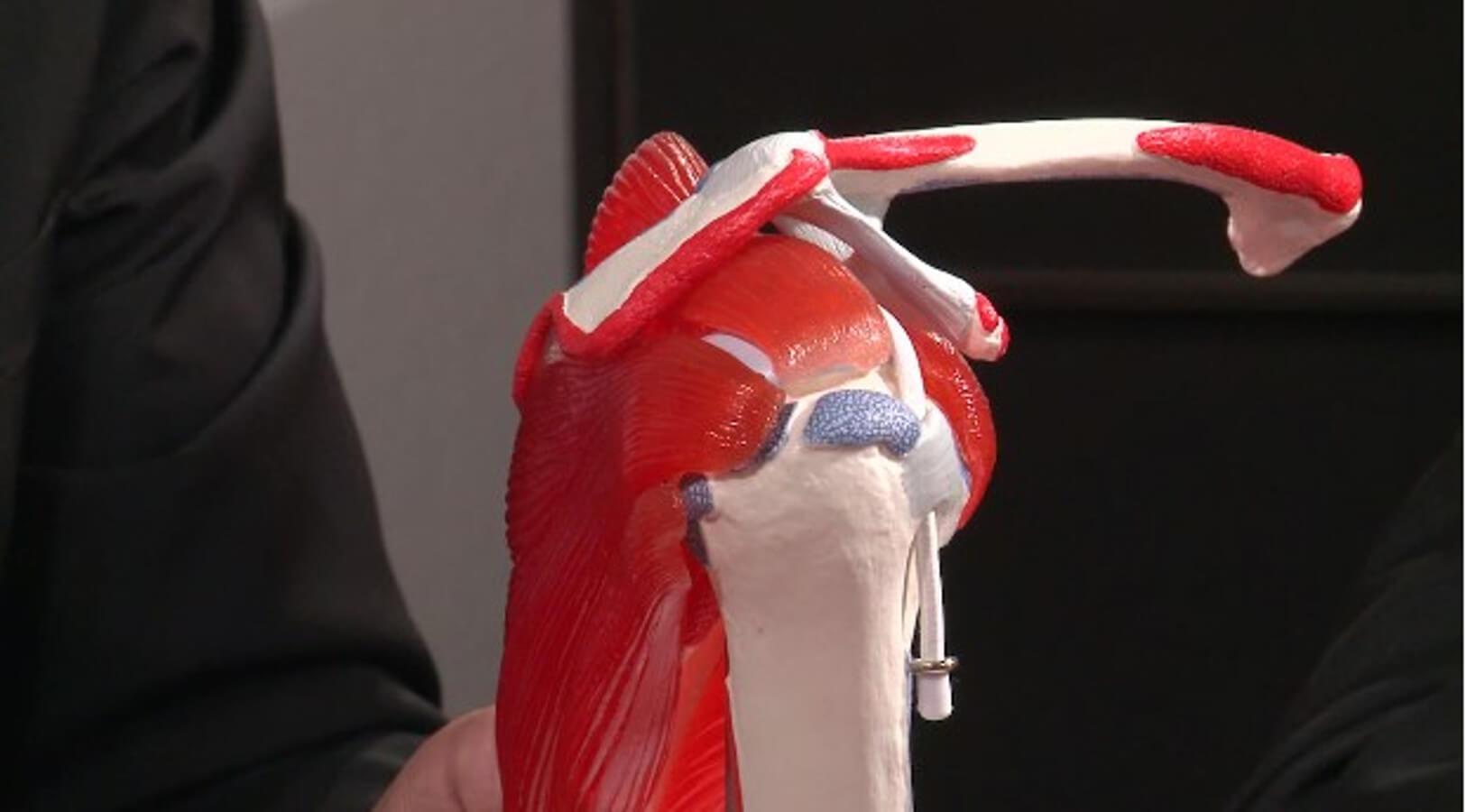 Sehnenriss in der Schulter - wann operieren?