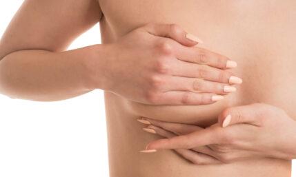 Brustkrebs – was nun?