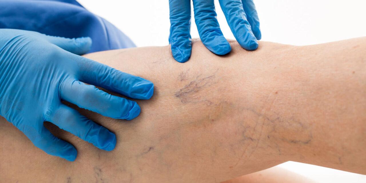 Krampfadern – modernes Therapieverfahren