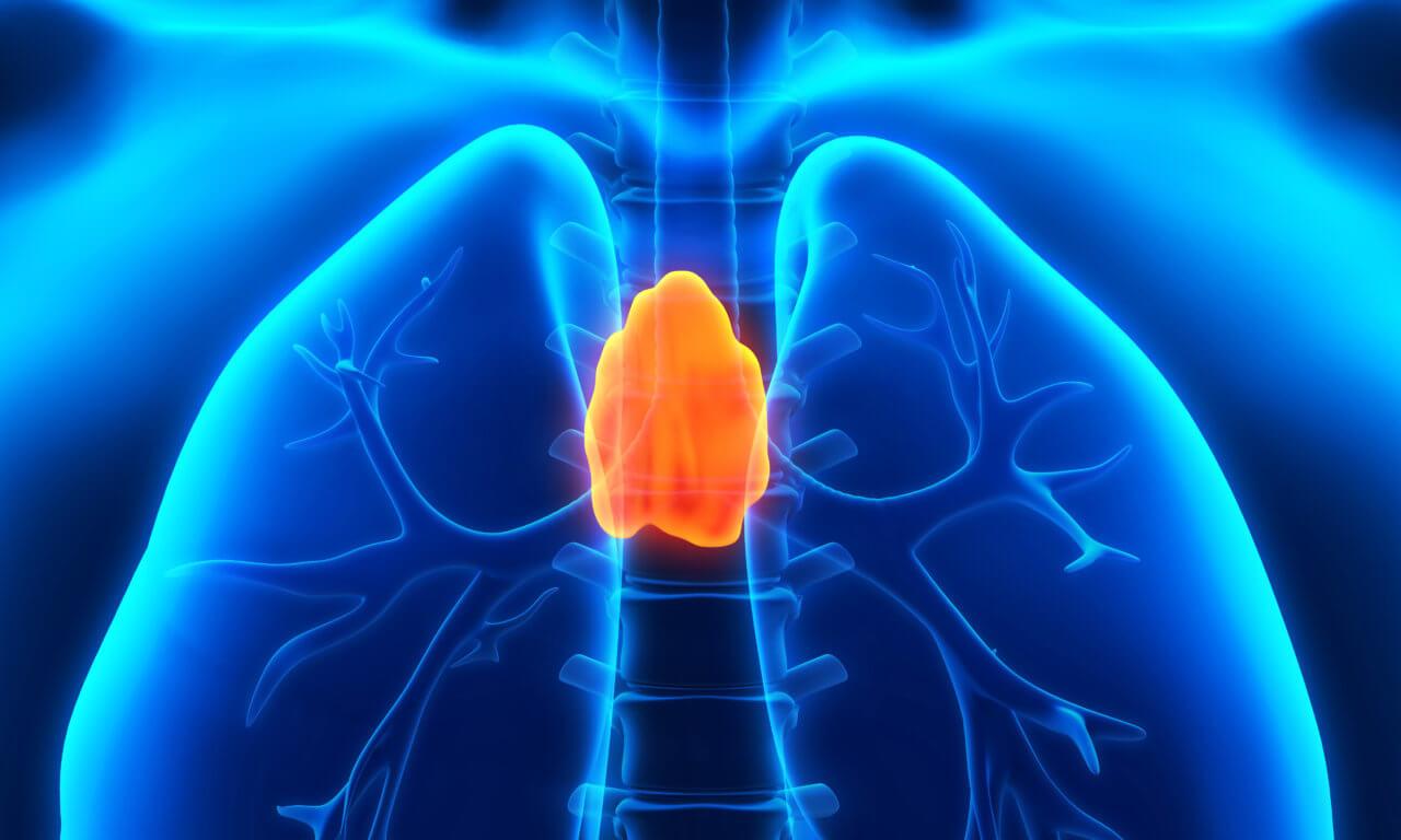 Thymusdrüse Krebs