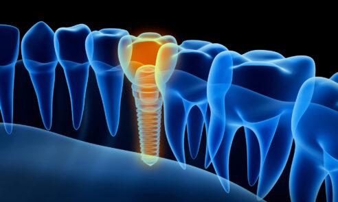 Zahnimplantate – Keramik auf dem Vormarsch?