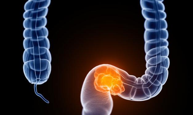 Darmkrebs – wie weiter?