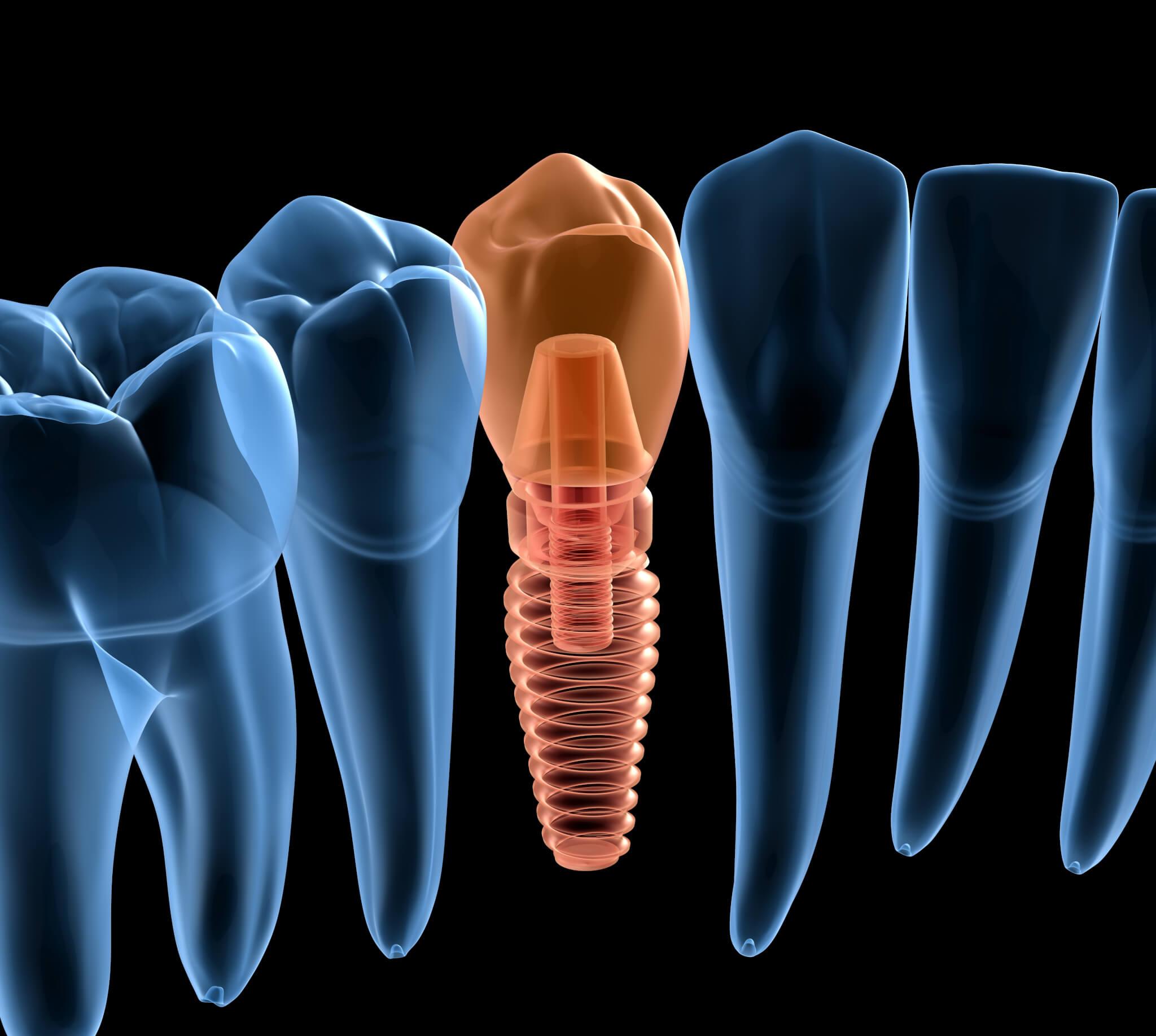 Zahnersatz in einem Termin