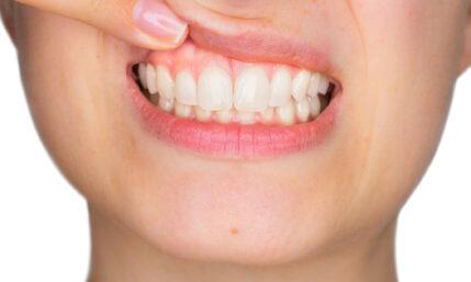 Zahnfleisch- und Knochenschwund – was tun?