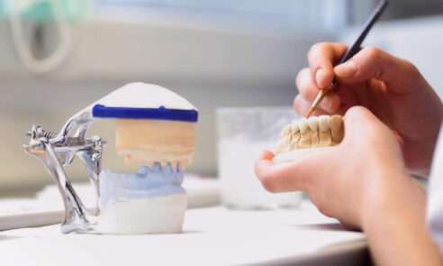 Implantatkronen – Was ist heute möglich?