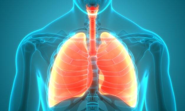 Lungenembolie – vom Symptom zur Diagnose